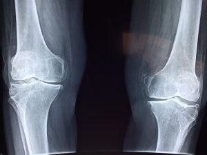 リウマチによる膝の痛み