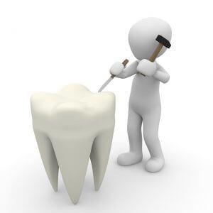 知覚過敏や歯の痛み
