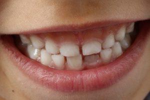 奥歯の痛み