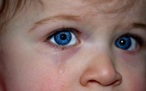 乳児の湿疹