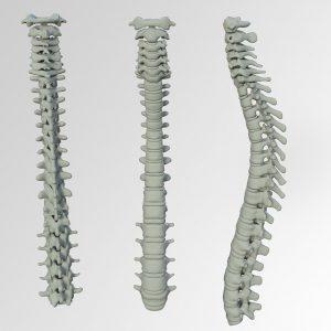 椎間板ヘルニアによる痺れ