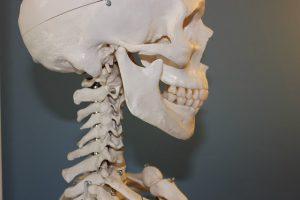 口が開きにくい顎関節症