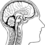 低髄液圧症候群